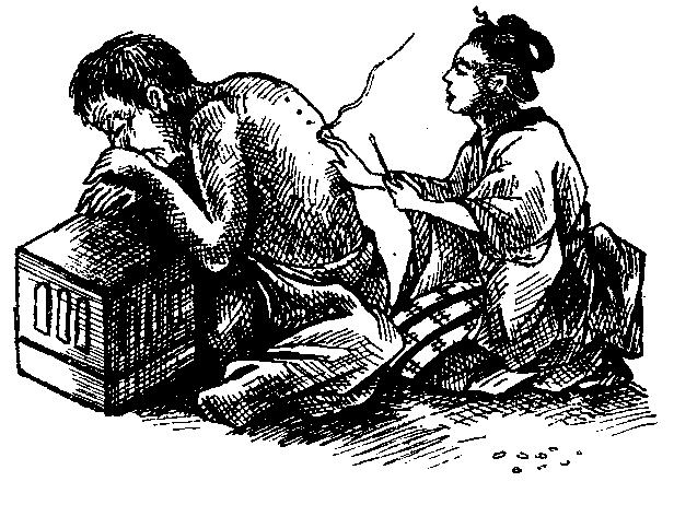 Battlefield Surgery Historical Medical Methods