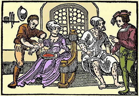 Bloodletting Historical Medical