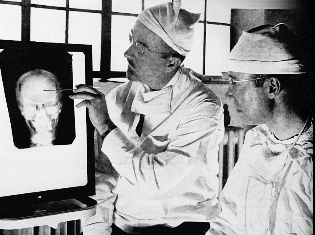 Lobotomies Historical Medical Methods