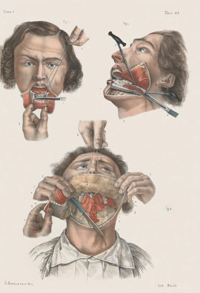 Removal of the lower jaw