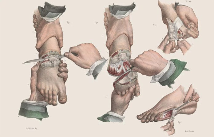 Amputation of various toes