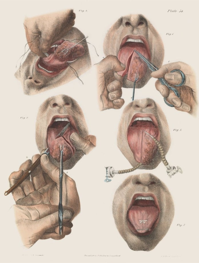 Surgery for cancer of the tongue