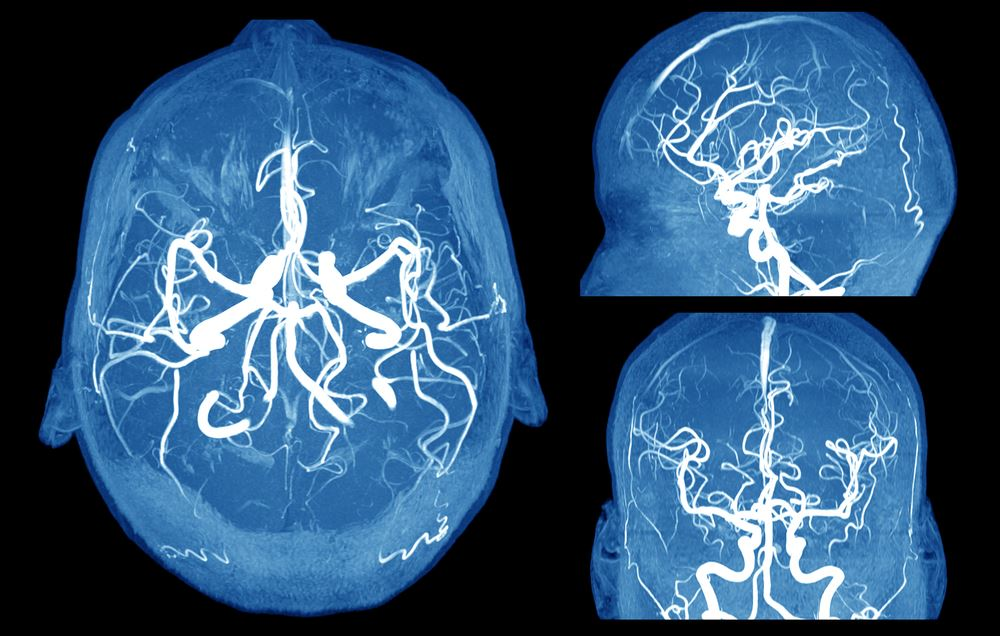 You might have a brain aneurysm that hasn't ruptured yet