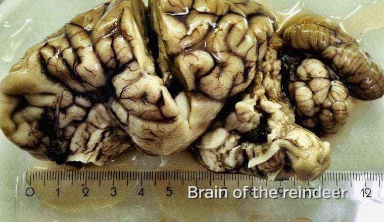 dear brain