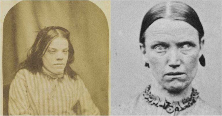 10+ Vintage Portraits Of Victorian Lunatic Asylum Patients That Will Send A Chill Down Your Spine